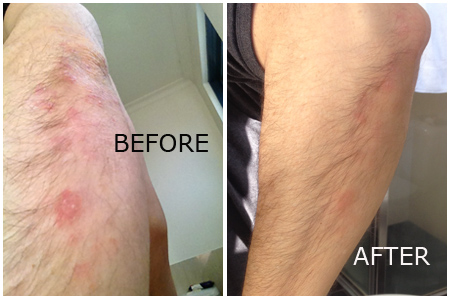 psoriasis elbow treatment